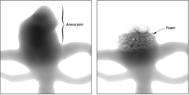 During an angiography procedure, a contrast agent is injected into the blood vessel and imaged using x rays to show how blood flows through the vessel. This virtual angiography simulation illustrates a patient-specific aneurysm before (left) and after (right) treatment with SMP foam. The foam reduces the flow (dark areas) and increases the blood residence time to promote clotting.